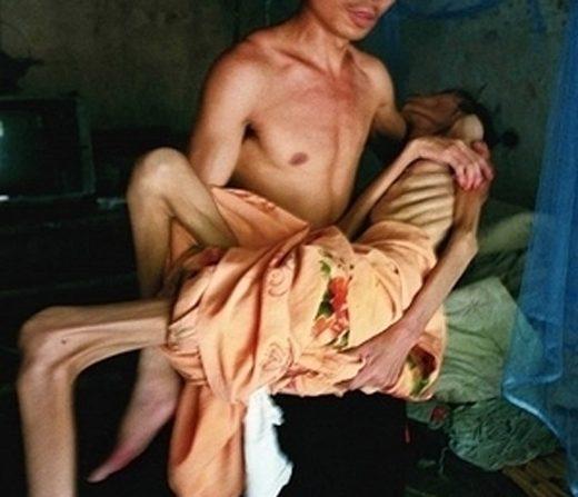 중국허난성에있는한에이즈마을의남자가생명이위급한에이즈환자를껴안고옮기고있다. | 에포크타임스DB