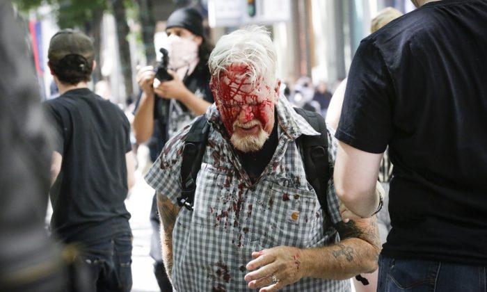 미국 오레곤주 포틀랜드의 파이오니어 코트하우스 광장에서 열린 집회에 참가한 한 시민이 안티파 극단주의자들의 공격으로 부상을 입었다. 2019.6.29 | Moriah Ratner/Getty Images