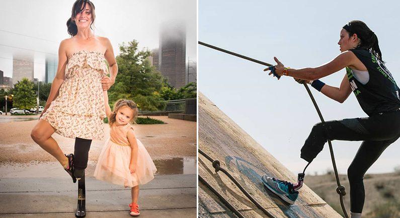 뱃속의 아기를 위해 다리 절단을 감행한 엄마 | MDWfeatures / Caitlin Conner