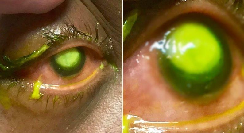 Facebook 'Vita Eye Clinic'