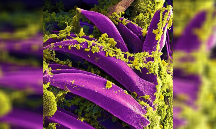 중국 환자 두 명에게서 확인한 흑사병 균. | Photo: National Institute of Allergy Infectious Diseases
