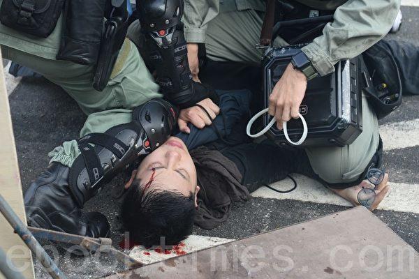 홍콩 중문대 학생이 경찰에 머리를 맞고 피를 흘리고 있다. | 사진=쑹비룽/에포크타임스