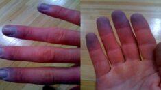 여름철에도 차고 시린 손가락, 색깔 변화까지 있으면 '레이노 증후군'일지도