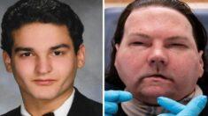 화상으로 얼굴과 양손 잃은 20대 청년에게 새 삶을 선물한 의료진 140명